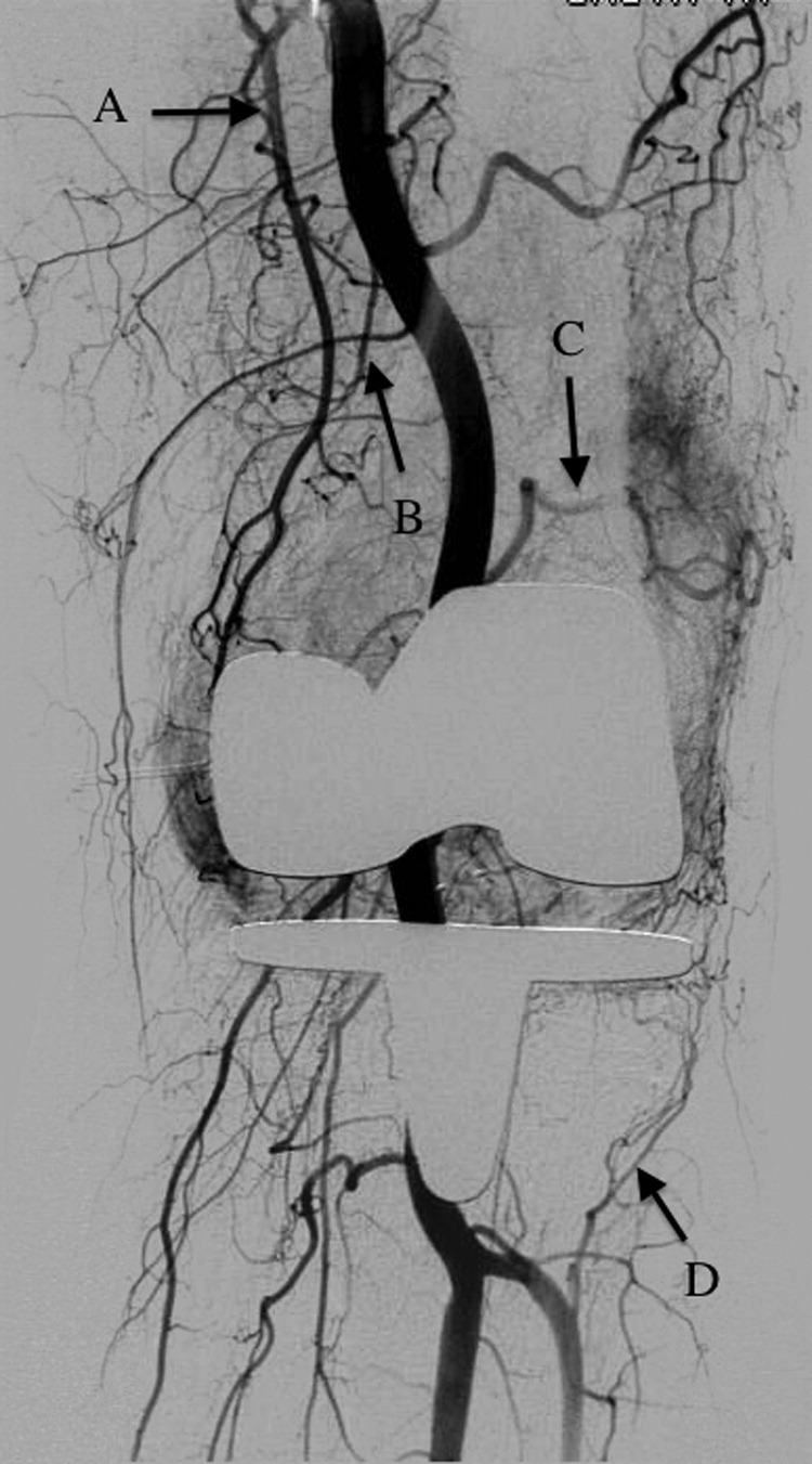 Geniculate Artery Embolization In The Management Of