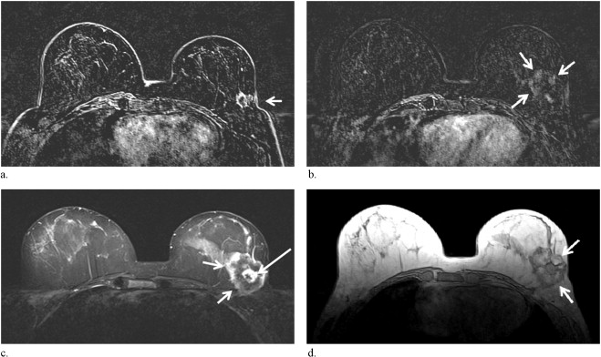 Neoplasm Cancer In Breast