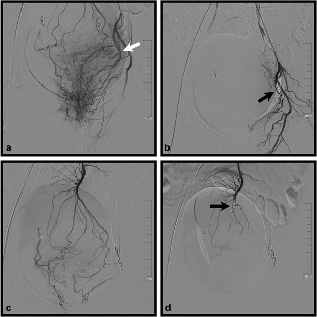 embolization of the superior and inferior rectal artery for chronic bleeding caused by